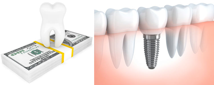 Affordable Dental Implants in Costa Rica
