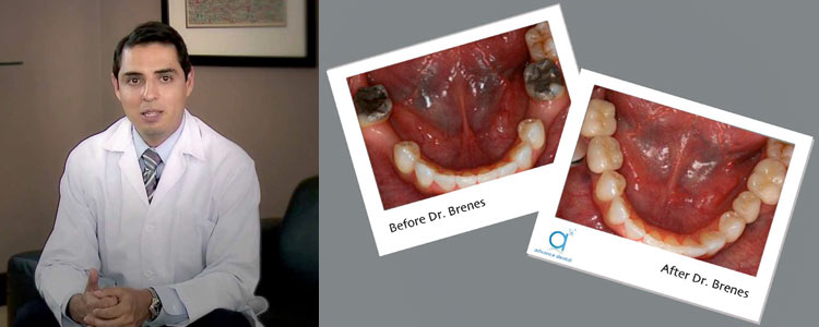 Dental Implants in Costa Rica Dr. Eugenio Brenes
